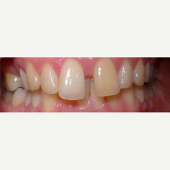 Dental Braces before 2651303