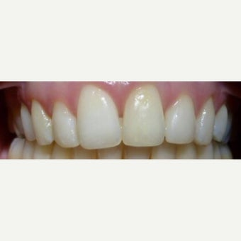 Dental Braces after 2651303