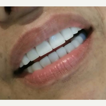 55-64 year old woman treated with Dental Implants after 3221066
