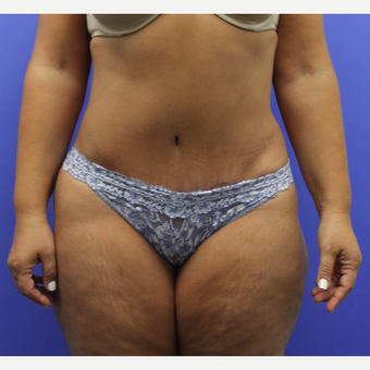 45-54 year old woman treated with Tummy Tuck after 3295297