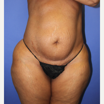 45-54 year old woman treated with Tummy Tuck before 3295297