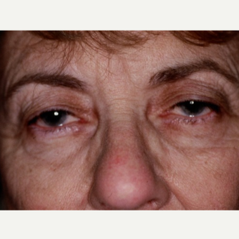 63 year old woman treated with Eyelid Surgery before 3026575