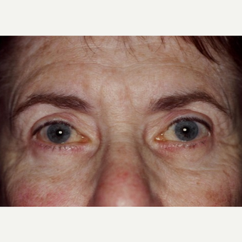 63 year old woman treated with Eyelid Surgery after 3026575