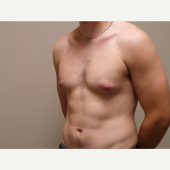 25-34 year old man treated with Male Breast Reduction before 3454694