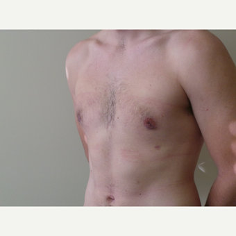 25-34 year old man treated with Male Breast Reduction after 3454694