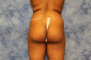 Brazilian Butt Lift before 1364125