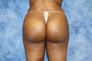 Brazilian Butt Lift after 1364125