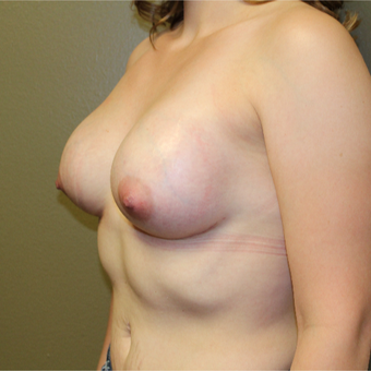 25-34 year old woman treated with Breast Augmentation after 3406735