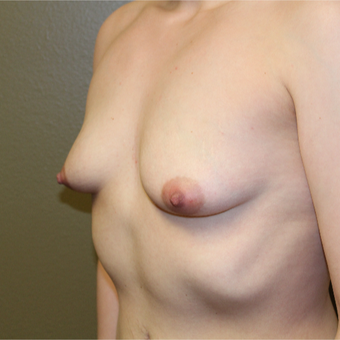 25-34 year old woman treated with Breast Augmentation before 3406735