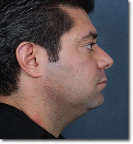 Neck Reduction Using Laser Liposuction 565968