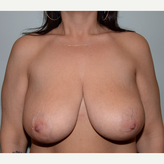 41 year old woman treated with Breast Lift before 3624203
