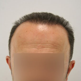 Hair Transplant with FUT+FUE Combined Technique after 1622238