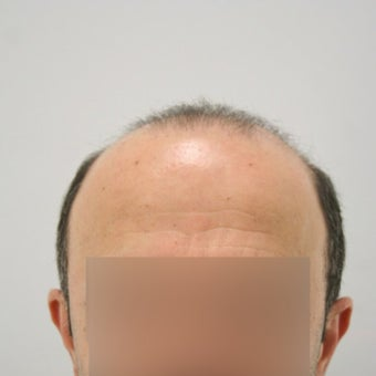 Hair Transplant with FUT+FUE Combined Technique before 1622238