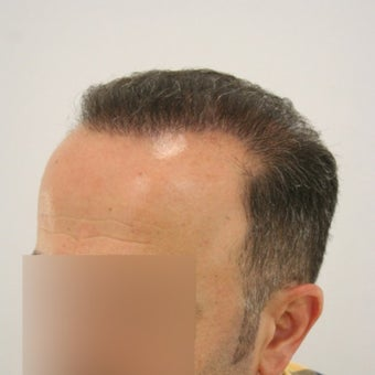 Hair Transplant with FUT+FUE Combined Technique 1622238