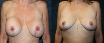 Removal of Breast Implants - Replaced with Stem Cell Enhanced Fat - Breast Scar Revision before 1334650