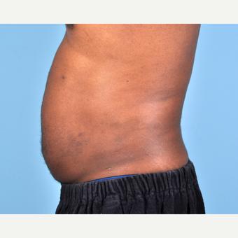 25-34 year old man treated with Liposuction after 3810104