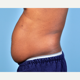 25-34 year old man treated with Liposuction before 3810104