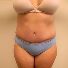 25-34 year old woman treated with Tummy Tuck after 3180617