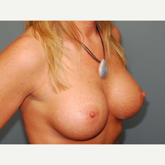 36 y/o Inframammary Sub Muscular Breast Augmentation after 3066166