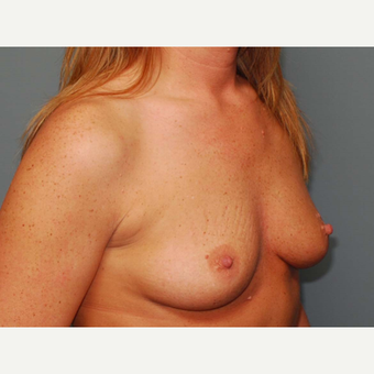 36 y/o Inframammary Sub Muscular Breast Augmentation before 3066166