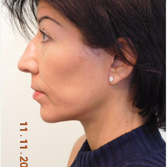 48 year old female treated with Lower Face Lift and Chin Augmentation after 3749102