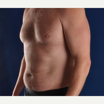 45-54 year old man treated with Liposculpture