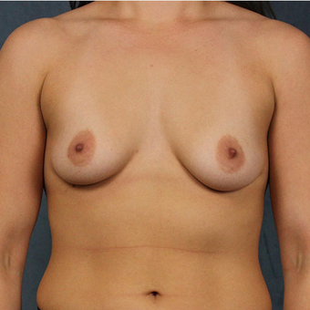 Mentor Breast Implants before 3033571