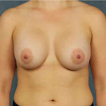 Mentor Breast Implants after 3033571