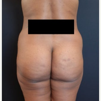 35-44 year old woman treated with Fat Transfer for her Butt Augmentation