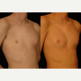 18-24 year old man treated with Pec Implants after 3659576