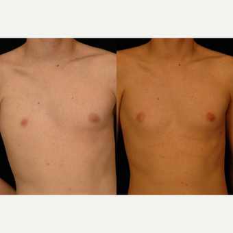 18-24 year old man treated with Pec Implants before 3659576