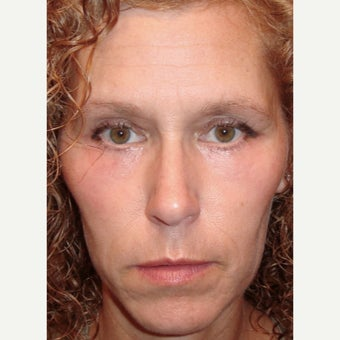 44 year old woman treated with Eye Bags Treatment and Laser Eyelid Surgery after 1933115