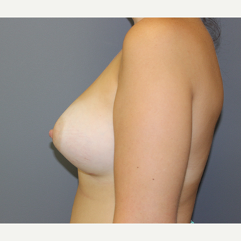 Bilateral Breast Augmentation after 3487050