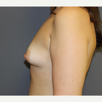 Bilateral Breast Augmentation before 3487050