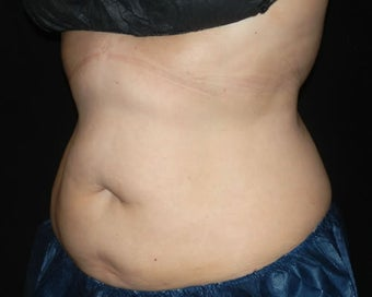 Coolsculpting after 1381878