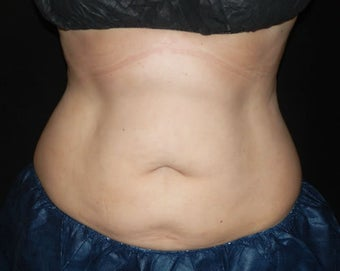 Coolsculpting 1381878
