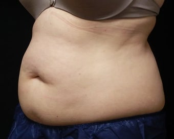 Coolsculpting before 1381878
