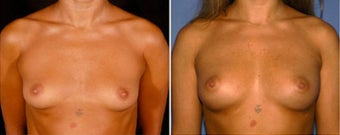 25-34 year old woman treated with Breast Fat Transfer before 2664907