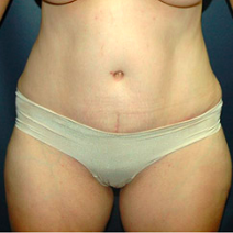 38 year old woman treated with Tummy Tuck after 3578271
