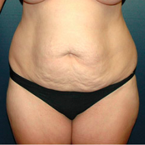 38 year old woman treated with Tummy Tuck before 3578271
