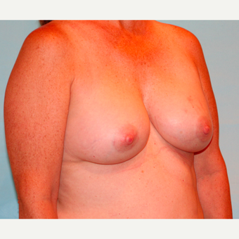 48 year old woman treated with 330 cc Ideal Breast Implants after 3468014