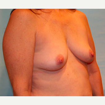 48 year old woman treated with 330 cc Ideal Breast Implants before 3468014