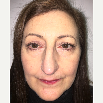 Eye Bags Treatment after 3767266