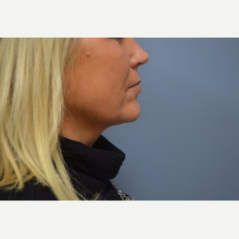 45-54 year old woman treated with Kybella after 2463691