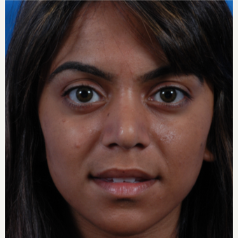 18-24 year old woman treated with Rhinoplasty after 3617233