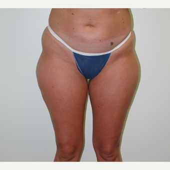 25-34 year old woman treated with Liposuction before 3774929