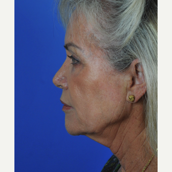 Facelift and neck lift before 3340727