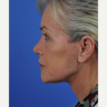 Facelift and neck lift after 3340727