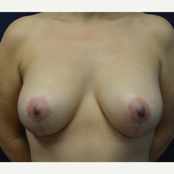 45-54 year old woman treated with Breast Lift with Implants after 3099046