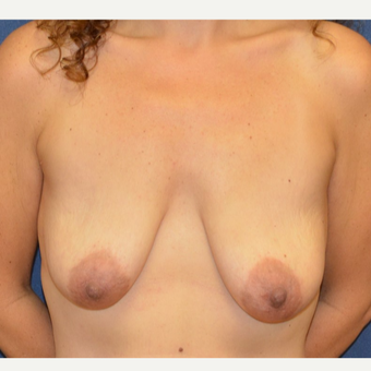45-54 year old woman treated with Breast Lift with Implants before 3099046